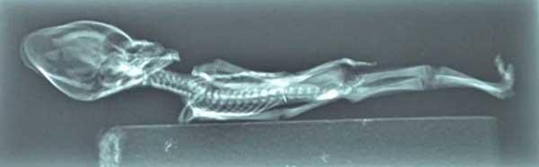 x光扫描发现外星人内部结构异常
